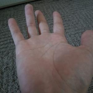 脊髄炎由来の症状でよく分からないのがあるんだが…。手を広げた時の指の状態が何なのか気になる話。教えて偉い人!