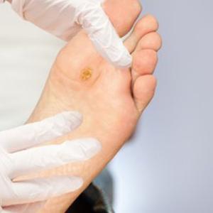 Biến chứng bàn chân tiểu đường
