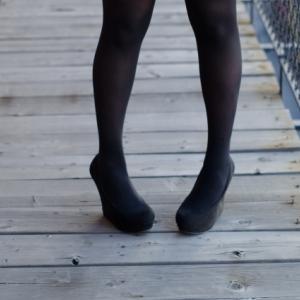O脚の種類と治す方法