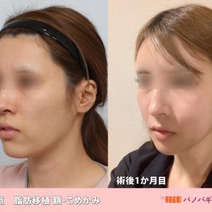 【症例写真】輪郭の悩みはバノバギ整形外科に任せた患者様の術後1か月目報告