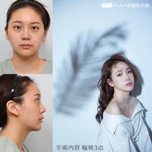 【症例写真】究極中国輪郭美人 バノバギ整形外科 ~韓国整形~