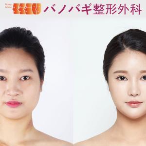 【症例写真】輪郭・鼻・目手術の6か月目の経過報告(*´▽`*)