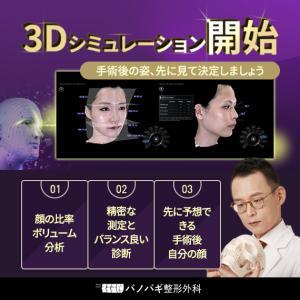 【お知らせ】バノバギ3Dシミュレーション手術後の顔を先に見てから輪郭手術しましょう