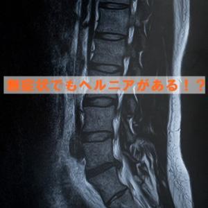 MRIでみられるヘルニア、すべり症などは腰痛の原因とは言えない