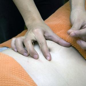 鍼灸とカイロプラクティックどちらを選ぶ?