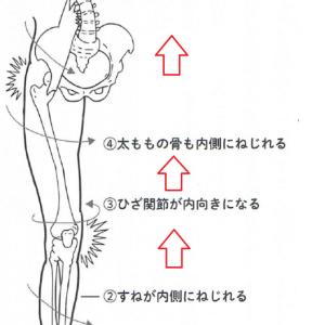 膝痛でお困りの方には骨盤調整とインソール