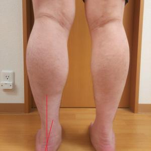 浦安市でさまざまな腰痛治療を受けても結局変わらないという方,『足』から見直しませんか?