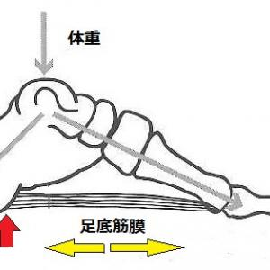 千葉県浦安市で足の裏の痛み(足底筋膜炎)でお悩みの方は