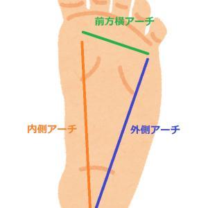 千葉県で偏平足・外反母趾におすすめのインソールとは?