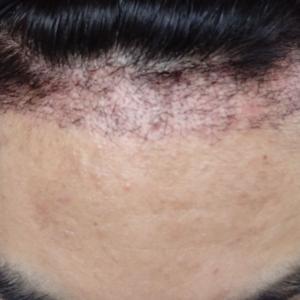 【3週間】植えた毛がかなり抜け落ちました(*_*)