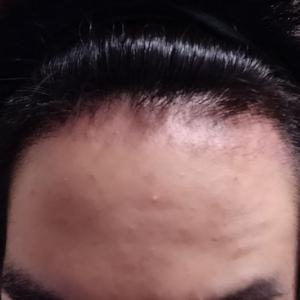 【1ヶ月】植毛した毛、ほぼ抜けました(T_T)