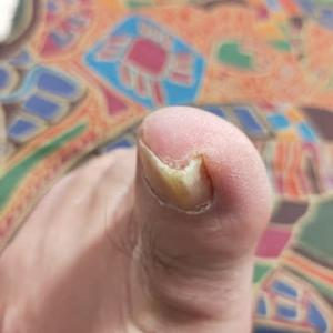 また足の爪が変形してきました