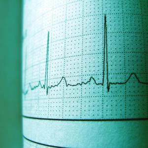 臨床検査技師が教える生理検査の仕事内容についてのお話