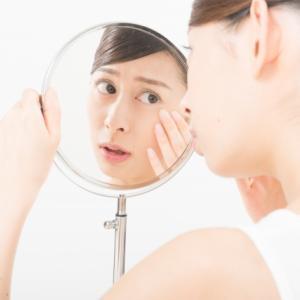 赤ら顔に特化した化粧水ULU「ウルウ」シェイクモイストミルクの購入方法と特徴