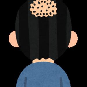 私が月千円で続けている薄毛治療【非推奨】
