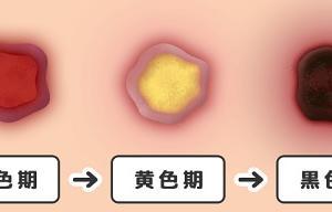 保健医療サービス分野(褥瘡)6月22日