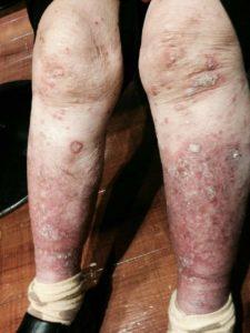 #アトピー性皮膚炎は腸内環境を改善するとこうなるぜ!☆閲覧注意☆