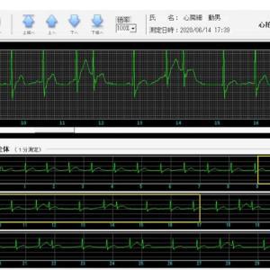 心房細動(上室性頻拍)が収まる可能性が高い時の心電波形