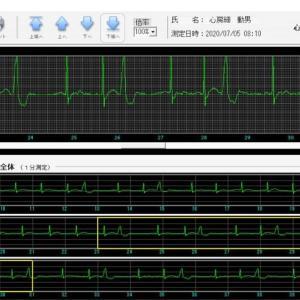心電計で初?のC判定、心室性期外収縮が頻発し改名の危機