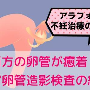 アラフォー不妊治療の記録7  両方の卵管が癒着・・・!?子宮卵管造影検査の結果(通院7回目)