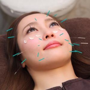 小顔でハリツヤ美人になれる美容鍼サロン寺澤の紹介動画公開