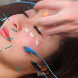 年々進化する紫外線対策と日焼けをケアする美容鍼