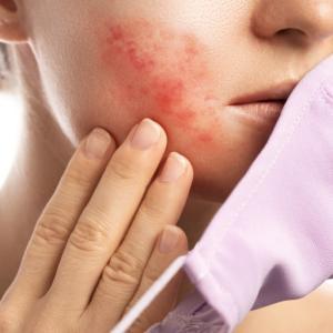 乾燥すると悪化する肌の赤みと痒み!脂漏性皮膚炎とは