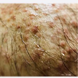 抗がん剤の副作用…その1 脱毛。