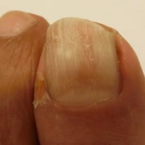 足の爪の治療。緑茶とベーキングソーダ 閲覧注意。。足指失礼。。