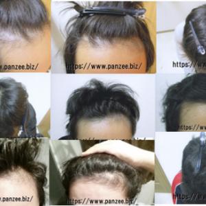 ミノキシジルとフィナステリドの併用で髪を生やす方法