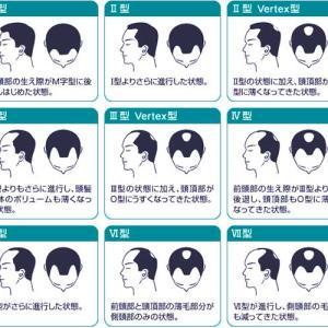日本ではAGAの悩みを持つ男性が1260万人