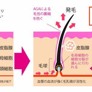 生え際発毛に効果的なミノタブのジェネクリ