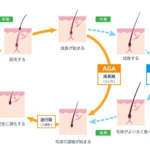 生え際が薄くなるM字ハゲを復活させる方法