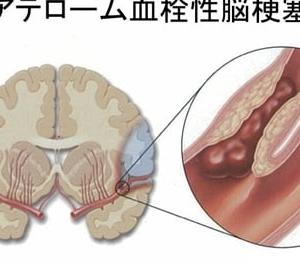 Tata煌はアテローム血栓性脳梗塞~和顔愛語~