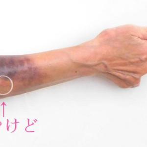 No8 ミクリッツ病(IgG4関連疾病)小さなやけどが