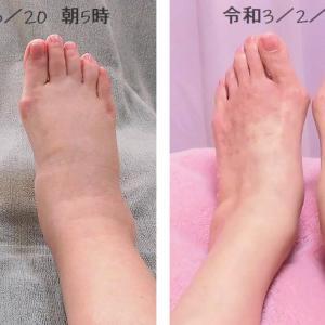 No13 ミクリッツ病(IgG4関連疾患)めちゃ肥る