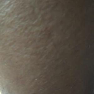 向こうずねの痛みは蜂窩織炎でした。12日に真田山プールの入場待ち時に三光神社に行った時蚊にかまれてかきむしったのが原因でした。本日真田山プールで3200メートル泳ぎました。