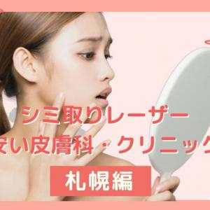 札幌でシミ取りが安くできる皮膚科・クリニックおすすめ8選 !レーザーの種類や料金