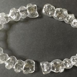 【歯並び比較2nd】アライナー25/45枚目|前歯の角度にご注目!
