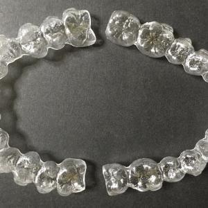 【歯並び比較2nd】アライナー35/45枚目|綺麗な歯で終盤に突入だ!