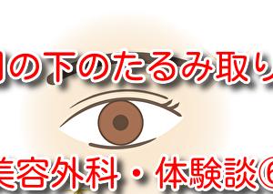 【体験談】50代で目の下のたるみを取る!⑥4日目の写真