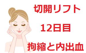 【切開フェイスリフト】12日目の拘縮と内出血