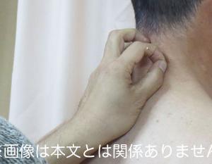 ヘルペスウイルスがかみついた三叉神経痛の激痛
