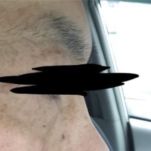 男40歳台のお肌ケア4