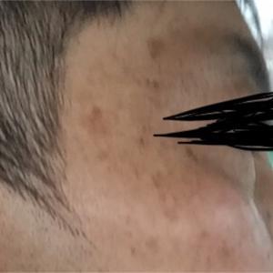 男40歳台のお肌ケア6