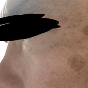 男40歳台のお肌ケア7