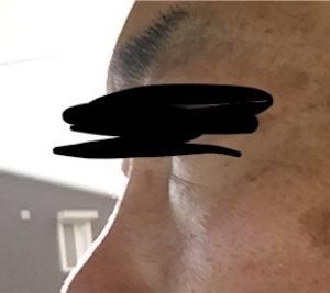 男40歳台のお肌ケア9