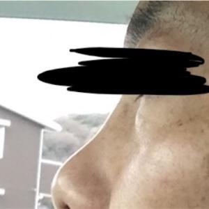 男40歳台のお肌ケア12