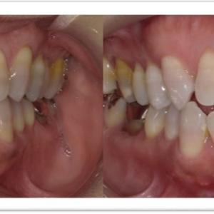 テトラサイクリン歯のホワイトニング②
