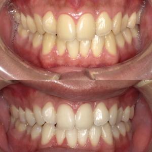 歯を削らずに白くする【ブライトホワイト症例】